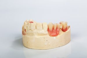 You can replace as many teeth as you wish to with dental implants in San Antonio.